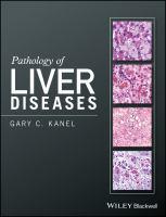 Pathology of liver diseases için kapak resmi